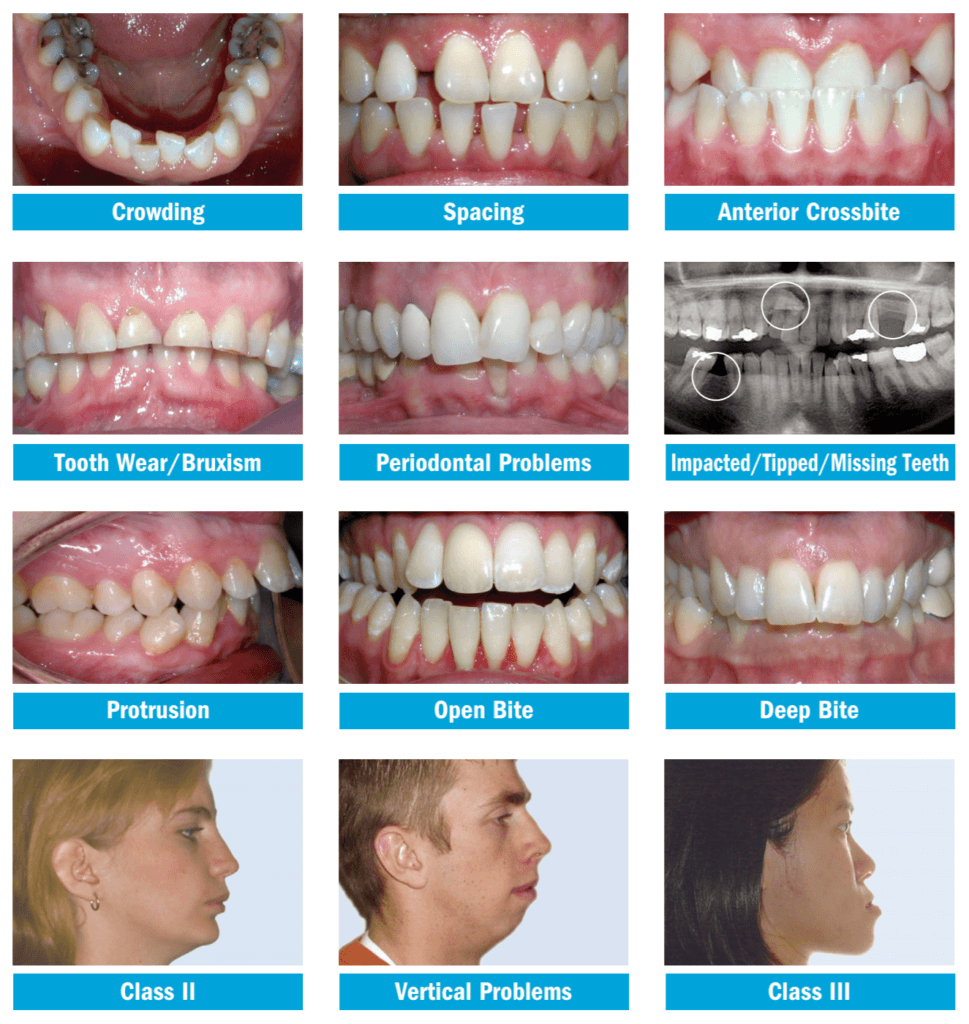 Common Orthodontic Problems in Adults